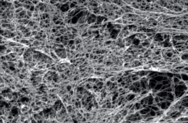 Nano-Protesi Nervose per le Lesioni Spinali